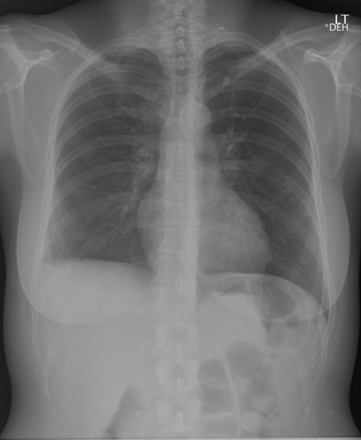 Radiograph Chest PA and Lateral XXXX, XXXX.