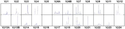 T-cell receptor spectratyping of 24 Vβ families obtained using polymerase chain reaction amplification across the VDJ region and then plotting according to the size of the PCR products. Patient with atypical cDGS showing very abnormal spectratype with several completely missing families and abnormal skewed distribution in other families.
