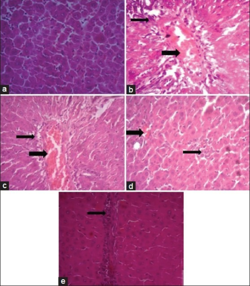 Effect of D. salina on the liver histopathological photomicrographs of the experimental groups of rats.Histopathological photomicrographs (×400) of livers of various groups stained with haematoxylin and eosin. (a) Normal architecture of rat liver, (b) Necrosis and hepatocellular fatty degeneration (eccentric nuclei) in acetaminophen intoxicated liver and congestion of portal vein and peri-portal infiltration of inflammatory cells, (c) Lesser damage of hepatocytes and low index of necrosis (centrally located nuclei) in D. salina-500 mg/kg pretreated group, (d) Minimal damage of hepatocytes and very low index of necrosis in D. salina-1000 mg/kg pretreated group and mild congestion, (e) Very lesser damage of hepatocytes and low index of necrosis in silymarin pretreated group, narrow arrows refer to inflammatory cells infiltration, wide arrows refer to congestion of portal vein.