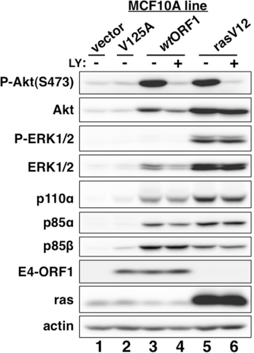 E4-ORF1 activates PI3K and upregulates PI3K protein levels in a PBM-dependent manner but does not activate the MAP kinases ERK1 and ERK2.MCF10A lines transduced with empty retroviral vector (vector cells) or the vector encoding wt Ad9 E4-ORF1 (wtORF1 cells), PBM mutant Ad9 E4-ORF1 V125A (V125A cells), or rasV12 (rasV12 cells) were treated with either DMSO vehicle (−) or 100 µM LY294002 (LY) (+) for 30 min. Cell extracts were analyzed in an immunoblot assay with antibodies to the indicated proteins.