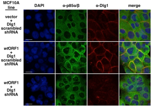 ShRNA-mediated Dlg1 depletion diminishes E4-ORF1-induced recruitment of PI3K to the plasma membrane.Indirect immunofluorescence assays were performed and analyzed as described in the legend to Figure 9 using the indicated MCF10A lines.