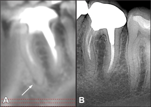 A = CBCT image in a sagittal view showing the presence of periapical radiolucency on the apical aspect of the mesial root of a mandibular first molar. B = digital periapical radiography of the same tooth showing a normal aspect of the bone in the periapical area.