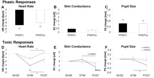 Influence of credibility on autonomic response modulation to phantom acupuncture.Phasic and tonic responses for heart rate (A and D), skin conductance (B and E), and pupil size (C and F) were contrasted between credible (PHNTc) and non-credible (PHNTnc) phantom acupuncture. n.b. *<0.05, **<0.01. Error bars represent standard error of the mean.
