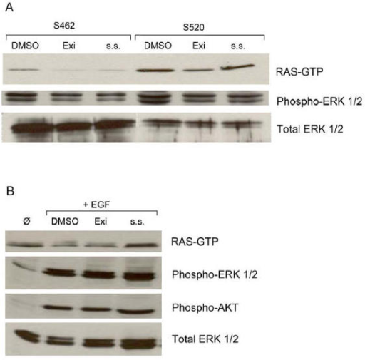 Inhibition of RAS-GTP and phosphorylated ERK1/2 in human MPNST cells exposed to Sulindac derivatives A: Cell lines S462 and S520 were grown in DMEM with 10% serum and treated at 80–90% confluency with either 0.2% DMSO, 500 μM Exisulind (Exi) or 125 μM Sulindac Sulfide (s. s.). Cells were lysed after 24 h and RAS was immunoprecipitated and detected by western blotting with an anti-RAS antibody, the same lysates were blotted for phosphorylated (phospho-) and basal (total-) ERK1/2. B: Upregulation of phosphorylated ERK1/2 and AKT for treated and untreated cells after addition of EGF, whereas the RAS-GTP level remains unchanged at all conditions. Cell line S462 was starved over night and then Sulindac metabolites were supplemented at concentrations mentioned above in DMEM containing 0.1% serum. EGF was added after 24 h of treatment, cells were lysed 15 min later and after western blotting incubated with phosphorylated and unphosphorylated ERK1/2, phospho-AKT and RAS-antibodies.