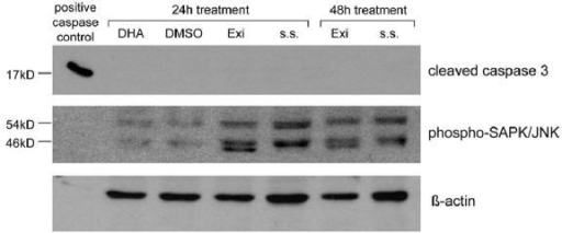 Activation of SAPK/JNK but not caspase-3 after treatment with Sulindac metabolites The activation of phospho-SAPK/JNK (dimer: 46 kD + 54 kD) reached the highest level after 24 h of treatment with Exisulind (Exi) and Sulindac Sulfide (s. s.), but no effect was seen on cleaved caspase-3 activation. DHA did not have any effect on neither JNK nor caspase-3 activation. Cell line S462 was grown in DMEM with 10% serum and treated at 80–90% confluency with 0.2% DMSO, 500 μM Exisulind (Exi) or 125 μM Sulindac Sulfide (s. s.) and blots were incubated with either phosphorylated SAPK/JNK or cleaved caspase-3 antibody. The positive control for caspase activation is a mouse MPNST cell line treated 7 h with 30 μM DHA.