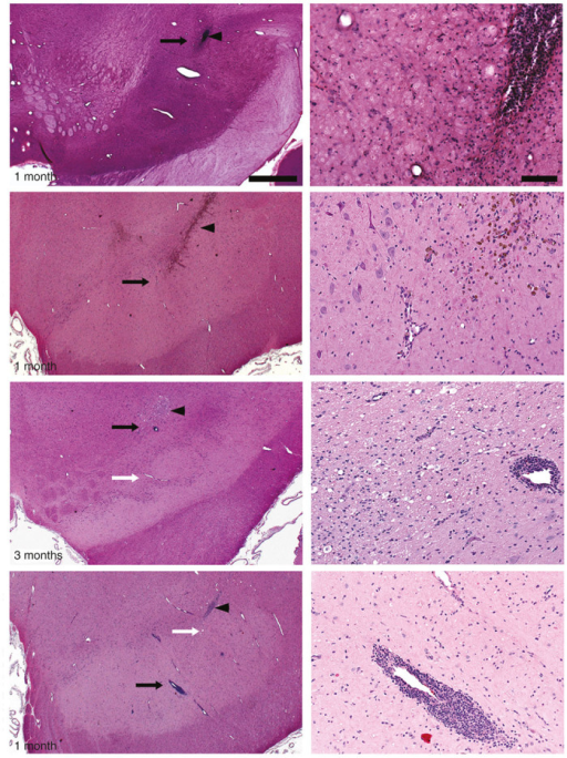 Surgery and vector-related histological findings. Independent evaluation of hematoxylin and eosin (H&E) staining of coronal sections containing the cannula tract revealed normal gliosis related to cannula insertion in all experimental groups (arrowheads). Higher magnification images (right column) were taken close to the cannula tip (black arrows in left column). H&E staining also showed perivascular cellular infiltrates in AAV2-hAADC-treated, but not PBS-treated, animals regardless of survival time. Although incidence and severity of perivascular cuffs was increased with AAV2-hAADC vector dose, these were not considered adverse. Note that there were also many vessels with no perivascular cuffing close to the infusion site (white arrows in left column) and that perivascular cellular infiltrates were not present in the pilot AAV2-hAADC animal. Scale bars: left column: 1 cm; right column: 100 μm.