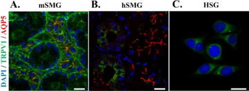 Distribution of TRPV1 in salivary gland epithelial cells (SGEC). Representative immunofluorescence labeling of TRPV1 in mSMG (A), hSMG (B), and HSG cells (C). SMGs sections and HSG were immunostained with anti-TRPV1 antibody and AQP5 antibody, then incubated with Alexa Fluor-linked anti-rabbit IgG (red) and Alexa Fluor-linked anti-goat IgG (green). Nuclei (blue) were labeled with 4,6-diamidino-2-phenylindole. (A) TRPV1were mainly detected in apical membrane in acinar cells and in basolateral membrane in ductal cells. AQP5 was used as a marker for acinar cells that was exclusively expressed in the apical membrane of acinar cells (red color). The merged orange color indicates that expression of TRPV1 at the apical membrane in acinar cells. (B) In hSMG, higher expression levels of TRPV1 was observed in ductal cells compared to acinar cells. (C) In HSG cells, TRPV1 was widespread in the cytoplasm. Scale bar indicates 20 µm. The results are representative of four independent experiments.