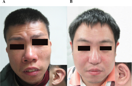 Front and ear views of two patients (A) Patient one: A 31-year-old male with a long face, bulbous nose, broad mouth, thin upper lip and low-set dysplastic ears. (B) Patient three: A 39-year-old male with an bulbous nose and slightly high-set ears with no earlobes.