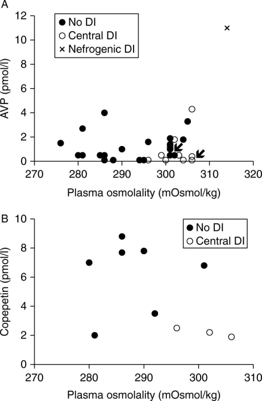 Plasma osmolality vs AVP (A) and CP (B) at the end of the water deprivation test. Arrows depict patient 1 (in the central DI group) and patient 2 (in the no DI group). DI, diabetes insipidus; CP, copeptin.