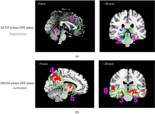 The fMRI signal increases evoked by ACUP and SHAM, (1) right insula and frontal operculum cortex; (2) dlPFC; (3) supramarginal gyrus/angular gyrus; (4) orbitofrontal cortex; (5) lateral temporal cortex and temporal pole.