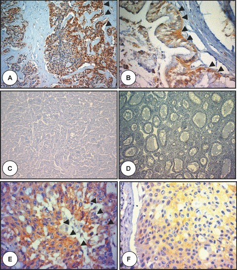 Polyductin expression in adult hepatobiliary carcinomas. (A) is the microphotograph of a cholangiocellular carcinoma (CCC) showing a moderate to intense FP2 staining of the neoplastic epithelium (arrowheads) embedded in a dense stroma (anti-FP2, ×200); in (B) there is a moderate FP2 staining in another CCC (arrowheads) (anti-FP2, ×400); in (C) no FP2 staining is demonstrated in a hepatocellular carcinoma (HCC) with trabecular growth pattern (anti-FP2, ×100), (D) no FP2 staining is also observed in another HCC with pseudoglandular growth pattern (anti-FP2, ×200), and (E and F) show tumour tissue metastasis to the lung from the liver combining cholangiocarcinomatous and hepatocellular features and showing FP2 staining mostly in cholangiocarcinomatous cells (E) (arrowheads) (anti-FP2, ×400).