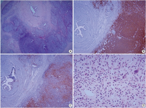 Microscopic features of mucosa-associated lymphoid tissue lymphoma and adjacent chronic inflammation. (A) Tumor cells infiltrating the perimuscular layer of the ureter form lymphoid follicles with follicular colonization. Immunohistochemically, tumor cells are diffusely positive for CD20 (B) and accompanying T cells are mostly CD4 positive (C). (D) Peripelvic adipose tissue shows a mixed infiltrate of lymphoplasma cells, eosinophils, and histiocytes with fibroblastic proliferation.