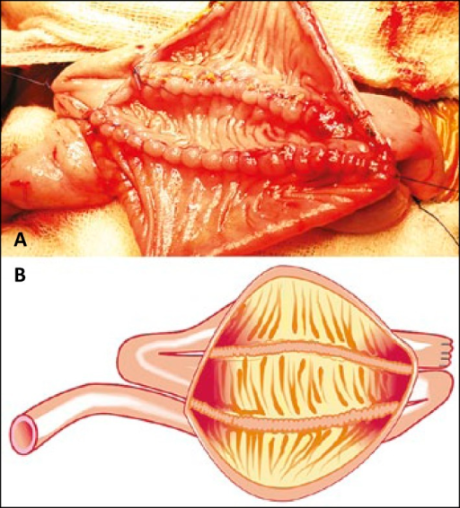 Posterior wall of the pouch was reconstructed using 2 – 0 vicryl continuous sutures and its pictoral depiction.