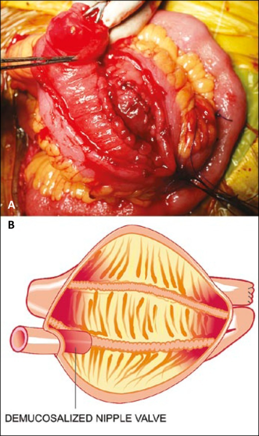 Demucosalization of interior of the nipple valve and its pictoral depiction.