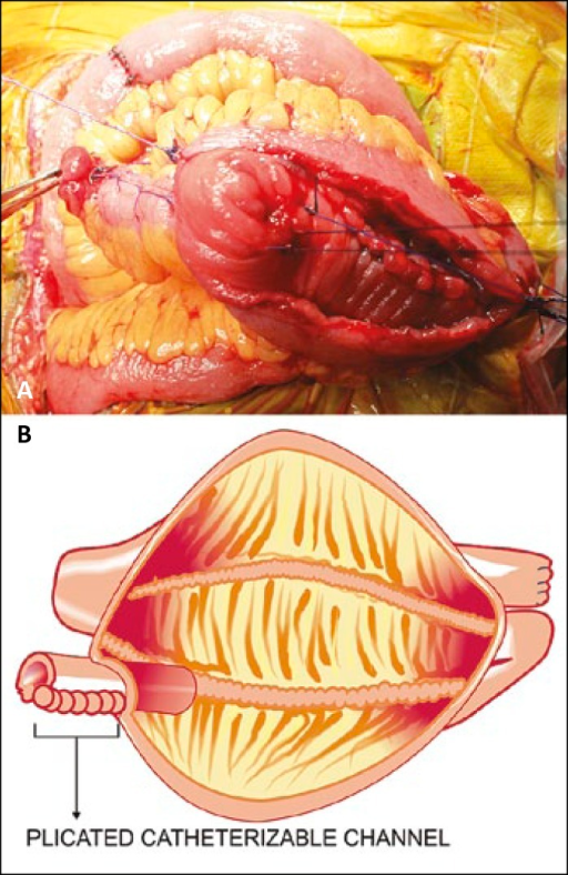 Plication of the intusussepted distal ileal segment with interrupted vicryl sutures and its pictoral depiction.