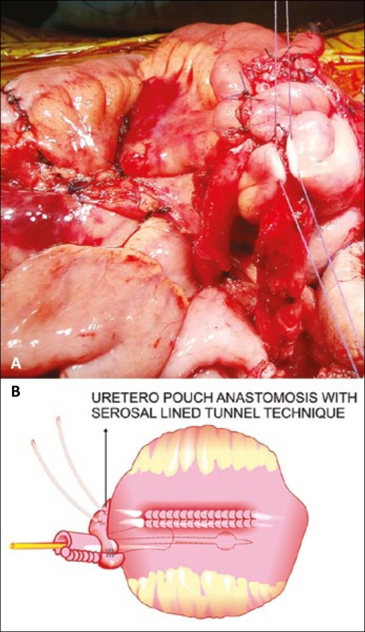 Ureteroileal anastomosis using serosal lined technique and its pictoral depiction.