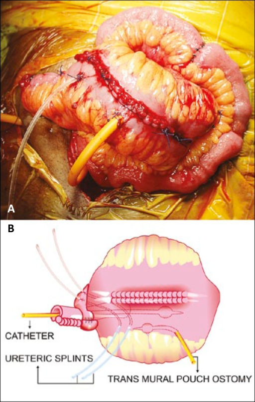 The completed Santosh PGI pouch with catheters and splints insitu and its pictoral depiction.