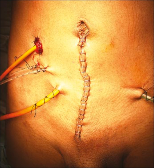 Abdomen showing the stoma with the perstomal catheter in situ.