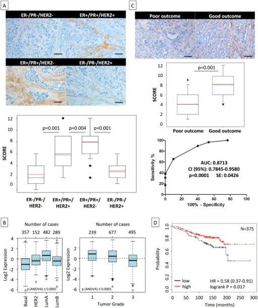 High asporin expression in human breast cancer matches with luminal-like tumor type and good patient outcome.(A) Representative IHC staining of asporin expression in human breast cancer tissues (upper panel). Box plots of asporin expression in 180 breast cancer patients with different status of HER2, ER, and PR are also shown (lower panel). The black line denotes the median expression, and the red line the mean expression. Significant differences in asporin expression were detected among all different subtypes of breast cancer. (B) Analysis of asporin mRNA expression in breast cancer tumors from different molecular subtypes (n = 1,280) and evaluation of asporin mRNA expression in breast cancer of different pathological grades (n = 1,411). (C) Representative IHC staining of asporin expression (upper panel), box plot showing the IHC score (middle panel) in breast cancer tissues from 60 patients with different outcomes, and ROC curve analysis of data obtained from 60 patients with different outcome (lower panel). Scoring and statistics were performed as outlined in the Methods section. (D) Kaplan-Meier survival curve based on asporin mRNA expression in untreated breast cancer with post-operative follow-up of 25 y (n = 375). Images in panels were taken at 100× magnification. All analyses outlined in (B) and (D) were performed using publicly deposited gene expression datasets [31,32] and according to procedures outlined in the Methods. AUC, area under the curve; HR, hazard ratio; SE, standard error.