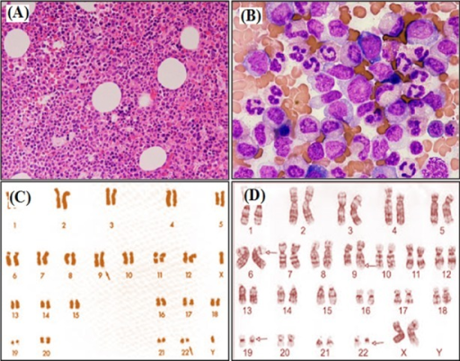 (A–B): Chronic myeloid leukemia (CML) showing hypercellular bone marrow on H & E staining at ×100 and ×400 magnification. (C): Classical karyotype of CML translocation – t(9; 22) & (D): CML Complex translocation 9,6,19,22.