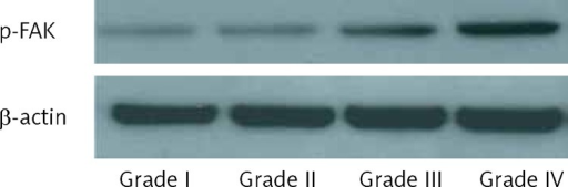 Phosphorylation of FAK in different grades of glioma tissues. Protein was extracted from glioma tissues and western blot was performed using antibodies against p-FAK and β-actin
