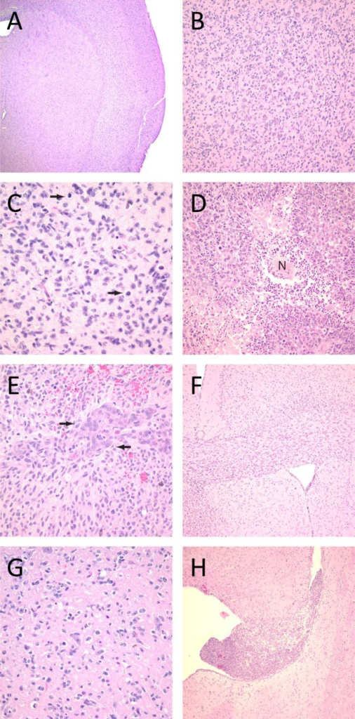 "H&E stains of orthotopic tumors formed in athymic mice, showing hallmark characteristics of GBMs.(A and B) All of the lines showed diffuse invasion of normal parenchymal. The hallmark features of glioblastoma were identified in the brains of mice injected with oncosphere lines, including increased mitotic activity (C, arrows), necrosis (D, designated ""N""), and vascular proliferation (E, arrows). The oncosphere lines also demonstrated other histologic features specific to invasive gliomas, including spread through white matter tracts (F), neuronal satellitosis (G), and subventricular tumor formation (H). Original magnification for panel A was 25x; for F and H, 50x; for B and D, 100x; and for C, E, and G, 200x."