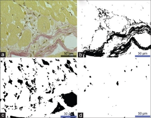 High magnification image of a Van Gieson-stained area (a) and the corresponding black/white masks from the digital quantitations including fibrous tissue (b), extracellular phase (c), and lipofuscin (d). This particular section was selected as both solid fibrous tissue with strands down to a few micrometers (lower half) as well as hardly discernible network-like strands below 1 μm (e.g. the capillarized area central left) are represented