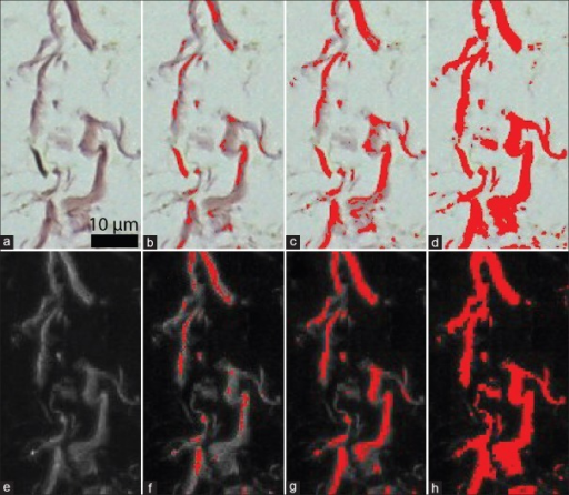 Images of the same section demonstrating the analytical verification of the fibrous tissue quantitation. In (a-d), which are Van Gieson-stained, increasing areas of red are demarcated with red going from deep red to lighter nuances of red. In (e-h), which is the blue to red ratio, image pixels with the highest intensity are demarcated in (f) and decreasing intensities are included toward (h) with (h) representing the digital quantitation