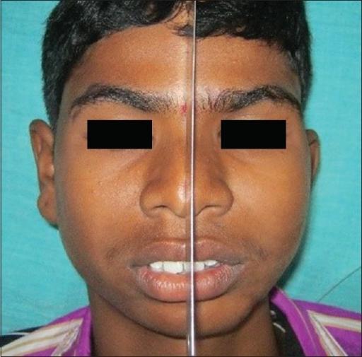 Facial mid line