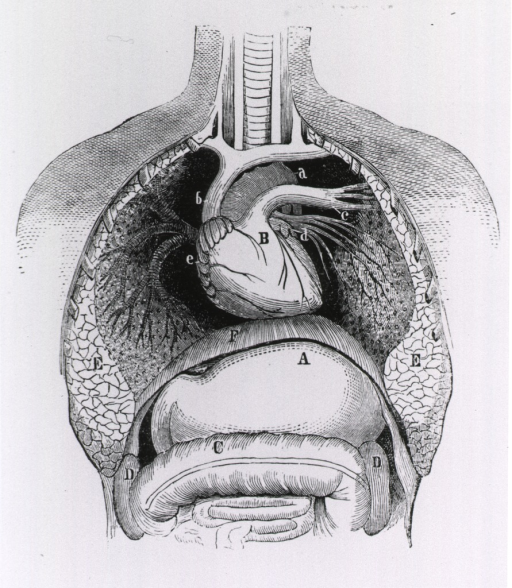 <p>An illustration showing a distended stomach and colon and the pressure they exert on the heart.</p>