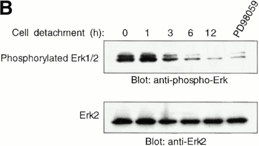 The Erk pathway functions as a survival pathway in attached HUVECs and modulates c-Flip expression. (A) Exogenous expression of activated Raf-1 enhances c-Flip expression in detached HUVECs. HUVECs were transfected with an empty vector (Control) or with a plasmid encoding activated form of c-Raf-1 (Raf-CAAX). After transfection, the cells were kept adherent or in suspension for 24 h. c-Flip expression was determined by immunoblot analysis (top) and by RT-PCR (bottom). (B) Cell detachment results in the inactivation of the MAPK/Erk pathway in a time-dependent manner. HUVECs were kept adherent or in suspension for the indicated times. Cell lysates were prepared and Erk activation was determined by an immunoblot analysis with an anti–phospho-Erk1/2 antibody (top). The membrane was stripped and reprobed with an anti-Erk2 antibody to confirm equal loading (bottom). As indicated, in one of the experiments, the effectiveness of the MEK inhibitor PD98059 was analyzed by treating adherent HUVECs for 16 h before cell lysis. (C) Inhibition of the Erk pathway in adherent HUVECs downregulates c-Flip expression. HUVECs were treated or not with the MEK inhibitor PD98059 for 16 h and c-Flip expression was determined by immunoblotting (top) and by RT-PCR (bottom). (D) Inhibition of the Erk pathway in adherent HUVECs sensitizes the cells to Fas-mediated apoptosis. HUVECs were transiently transfected with an empty control vector or with a plasmid encoding Fas, together with plasmid coding for GFP. After transfection, the cells were treated or not with 25 μM of the MEK inhibitor PD98059 in the presence or absence of 1 μg/ml of the anti-Fas antibody CH11 for 24 h. Apoptosis analysis by FACS® was carried out in the double positive cell population for propidium iodide and fluorescent GFP as described above. Bars indicate SD in a representative experiment done in triplicate. (E) Exogenous expression of activated Raf-1 enhances Erk phosphorylation in HUVECs. HUVECs were transfected with an empty vector (Control) or with a plasmid encoding activated form of c-Raf-1 (Raf-CAAX). After transfection, the cells were kept adherent or in suspension for 12 h. Cell lysates were prepared and Erk activation was determined by an immunoblot analysis with an anti–phospho-Erk1/2 antibody (top). The membrane was stripped and reprobed with an anti-Erk2 antibody to confirm equal loading (bottom).