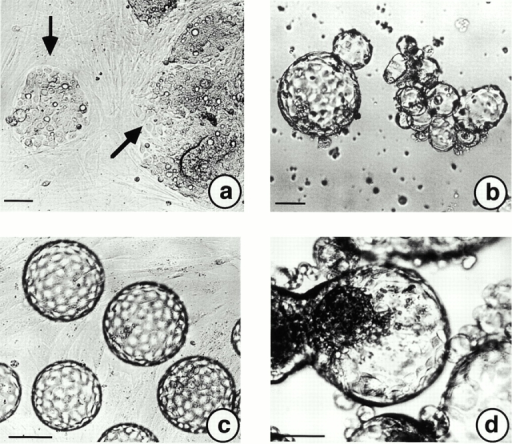 Influences of foreskin-derived fibroblasts (Kif-5) on A818-6 hollow sphere development in coculture experiments. (a) A818-6 monolayer cells were trypsinized and seeded onto a preformed, confluent fibroblast monolayer. A818-6 monolayer plaques (black arrows) are shown after 2 d in coculture. (b) In a second experimental set-up, premature (5–6-d-old) hollow spheres were seeded onto a confluent fibroblast monolayer. (c) Premature hollow spheres grew to a homogenous size and regular shape within 2 d. Coseeding of trypsinized A818-6 cells together with fibroblasts onto solid agarose at a ratio of 1:1 increased the speed of A818-6 hollow sphere development dramatically. Premature hollow spheres were observed after only 2 d in coculture (d). This day of development is normally characterized by signet ring–like cells (see Fig. 1 b). Bars, 50 μm.