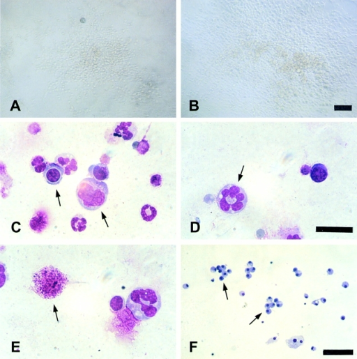 In vitro differentiation potential of muscle-derived cells under myeloid conditions. Photomicrographs A and B show the pp6 forming clones in methylcellulose under myeloid conditions. Verification of the multimyeloid nature of the resulting cells was performed by May-Grunwald-Giemsa staining. Two types of clones derived from Sca-1, CD34 positive cells (pp6) were identified: (1) multipotent clones that displayed a multimyeloid potentiality (mainly macrophages, megakaryocytes, and granular polymorphonuclear cells) (C, D, and E); and (2) clones with a restricted myeloid potential that were able to differentiate into either macrophages or mast cells (F). Bars: (A and B) 120 μm; (C and D) 50 μm; (E and F) 120 μm.