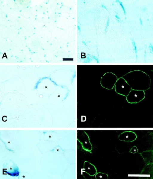 Sections of the muscles of mdx/mdx mice injected intraarterially with muscle-derived pp6 cells showing dystrophin and des-LacZ gene expression. LacZ staining of muscle sections from donor des-LacZ mice was performed as a positive control (A and B). Some LacZ-positive myofibers (C and E) were found in the intraarterially injected mdx muscles that colocalized with dystrophin-positive myofibers of the adjacent sections (D and F). Bars, 50 μm.
