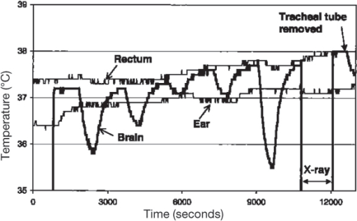 Brain, rectal and ear temperatures in an anaesthetised, intubated pig. The nasal cavities were flushed with oxygen (2–10 l/min) in repeated 10-min periods. The brain temperature was measured in the third ventricle; the position of the probe was controlled by a x-ray. The tracheal tube was removed at the end of the experiment.