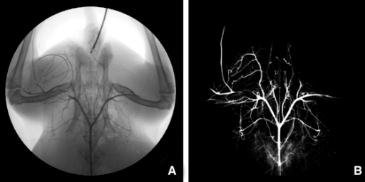 Example of an X-ray angiogram and the region of interest (circle) in the ligated limb (A) and post-subtraction angiograms (B) 3 weeks after ligation.