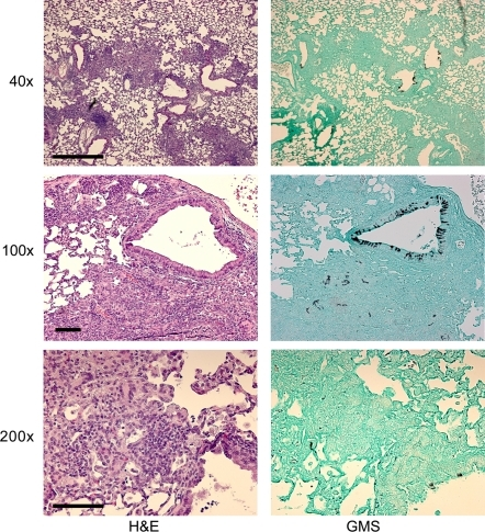 Representative histopathology of X-CGD mouse model SDW1 infected survivors.Hematoxylin and eosin (H&E) or Gommori's methenamine silver (GMS) stains. Resolution of inflammation and necrosis is observed in all surviving animals on day +14 of the infection. However, lesions are still apparent as is common in these mice, but necrosis and debris is significantly reduced. Fungal tissue remains evident on GMS stains indicating that despite surviving the infection, these mice have not entirely cleared the fungal infection. This result confirms the importance of a functional NADPH oxidase in resistance to Aspergillus infections, and suggests that increased hypoxia prevents proliferation of fungal tissue in the absence of SrbA. Bar = 500 µm for 40×; Bars = 100 µm for 100× and 200×.