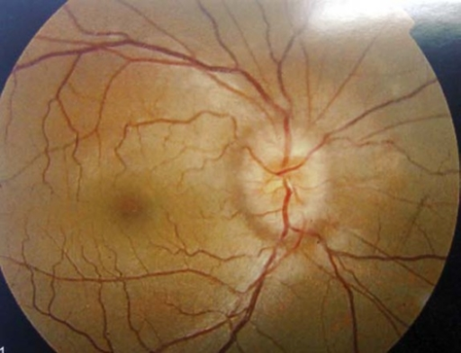 Fundus photography of 14-year-old female with IIH showing severe papilledema.