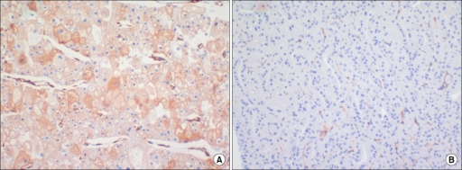 Expression of caveolin-1 in chromophobe renal cell carcinoma and oncocytoma. (A) Chromophobe renal cell carcinoma is diffuse, moderate to strong positive for caveolin-1, showing granular and cytoplasmic staining with membranous condensation. (B) Oncocytoma is negative for caveolin-1.