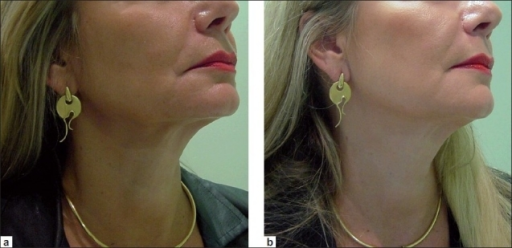 A Downturn Of The Oral Commissure And Hypotrophy Of T Open I