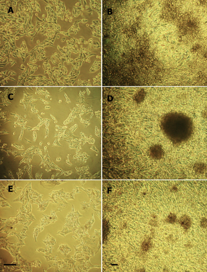 Phase contrast photomicrographs of cell lines in subconfluent and overgrowth conditions. At passage 3, cell lines MEL20–06–039 (A and B), MEL20–06–045 (C and D) and MEL20–07–070 (E and F) show early stage propagation (A, C, and E) and late stage confluent propagation with heaped up cells and no evidence of contact inhibition (B, D, and F). Melanin production is evident in two cell lines (MEL20–06–045 and MEL20–07–070). Original magnification (A, C, E) 200×, (B, D, F) 100×. Scale bar is 30 µm.