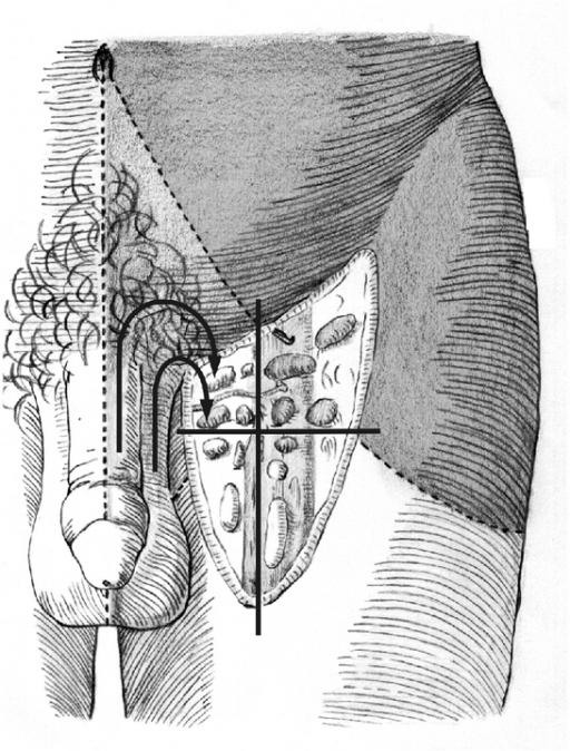 Schematic Drawing Of Lymphatic Drainage Of Inguinal Nod Open I