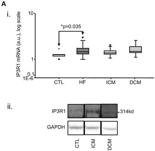 Increased human myocardial expression of Inositol-3-Phosphate Receptor sub-type 1 (IP3R1) in heart failure as a whole (HF, n = 36).i. Box-plot of mRNA expression, showing a significant increase over CTL (n = 6, p = 0.035); ii. representative immunoblot for protein expression of IP3R1. (a.u.: arbitrary units).