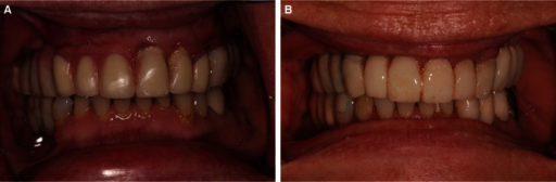A: Implant-tooth retained interim prosthesis, two weeks after implant placement #6, 11, B: mplant retained interim prosthesis, two weeks after extraction of teeth #9 and 10.
