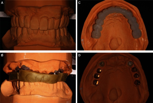 A: Maxillary interim prosthesis cast against mandibular definitive prosthesis cast, B: Maxillary definitive cast cross mounted on mandibular cast, C: Solid resin matrix on definitive cast, D: Zirconia and gold platted titanium custom abutments on definitive cast.