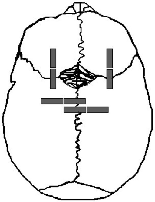 Schematic indicating the locations of the pediatric cranial bone and suture specimens. Two parietal bone and two frontal bone specimens were removed from the skull along with two parietal-parietal sutures (sagittal suture) and two frontal-frontal sutures (coronal suture, superior view).