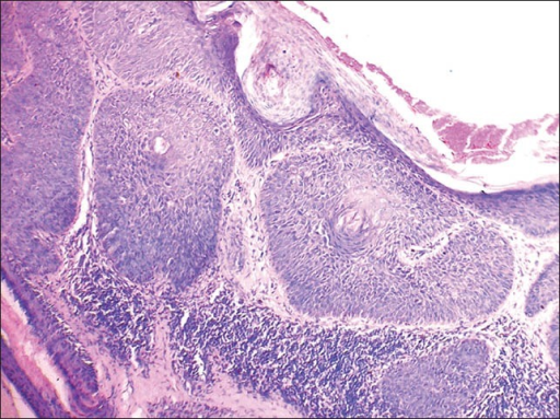 Section of skin showing atypical keratinocytes having a windblown appearance with lymphocytic infiltrate in the dermis suggestive of BD. (H and E, ×400)