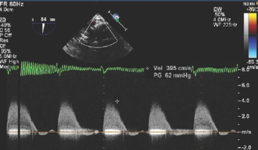 Mid-oesophageal ascending aortic long axis view measuring the gradient across the aortic narrowing