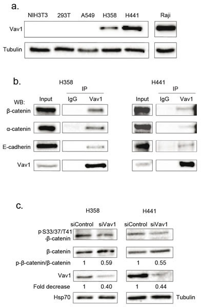 Vav1 interacts with β-catenin in lung epithelial cancer cell linesa. Vav1 protein expression in pulmonary and lymphoid cell lines. Total cell extracts were analysed by sequential immunoblotting with the indicated Abs. b. Total cell extracts from the indicated cells were immunoprecipitated (IP) with anti-Vav1 Ab or control IgG. Immune complexes or total extracts (Input) were analysed by sequential immunoblotting with the indicated Abs. c. Η358 and Η441 cells were transfected with the indicated siRNA and proteins levels assessed 72 hours after transfection. Ratio between phospho-β-catenin and total β-catenin was calculated relative to transfection of control siRNA.