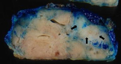 The tumor measured 4.7 × 4.0 × 2.2 cm in the greatest dimensions, and the cut surface showed a white part within a yellowish nodule, which was much the same as the hyperechoic area on US and the calcified area on MMG (arrow)